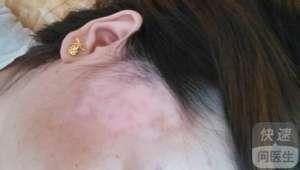 治疗局限型白癫风要注意哪些事项